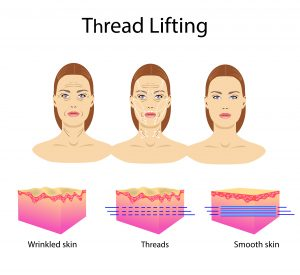 Thread lifts - Perpetua Consmetic Injectables